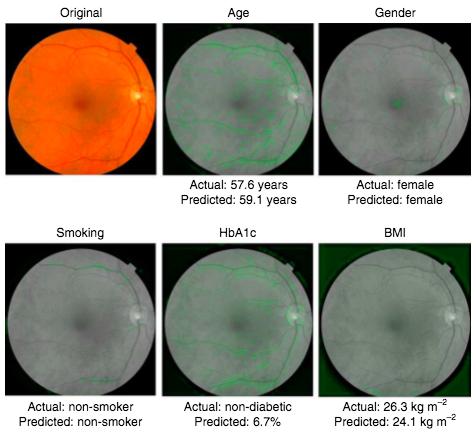 google retina previsione rischi malattie